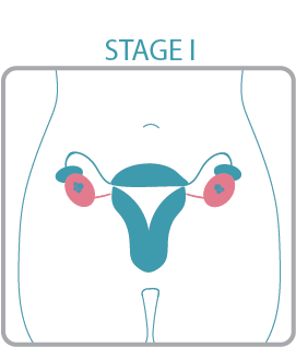 If the cancer involves the surface of the ovary or ovaries or there are  cancer cells in the body fluid around the ovaries (stage 1C), you may also  need ...